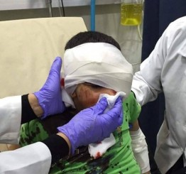 Palestine: Palestinian boy, 10, critically injured by Israeli rubber bullet in Jerusalem