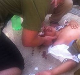 Palestine: Palestinian child injured after being rammed by Israeli settler's car