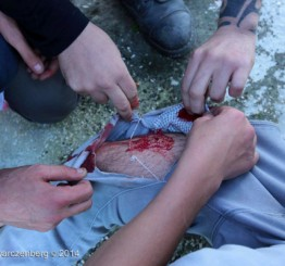 Palestine: More Palestinian protesters shot with live ammunition