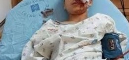 Palestine: Palestinian shot in the eye in Jerusalem